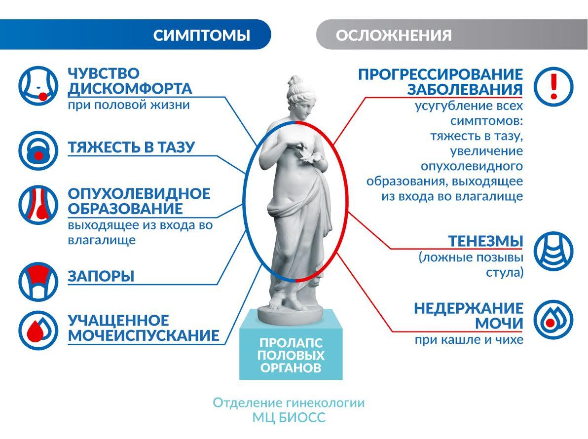 Пролапс половых органов (опущения задней стенки влагалища) симптомы и осложнения