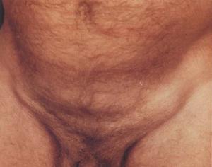 паховый лимфаденит у мужчин при сифилисе