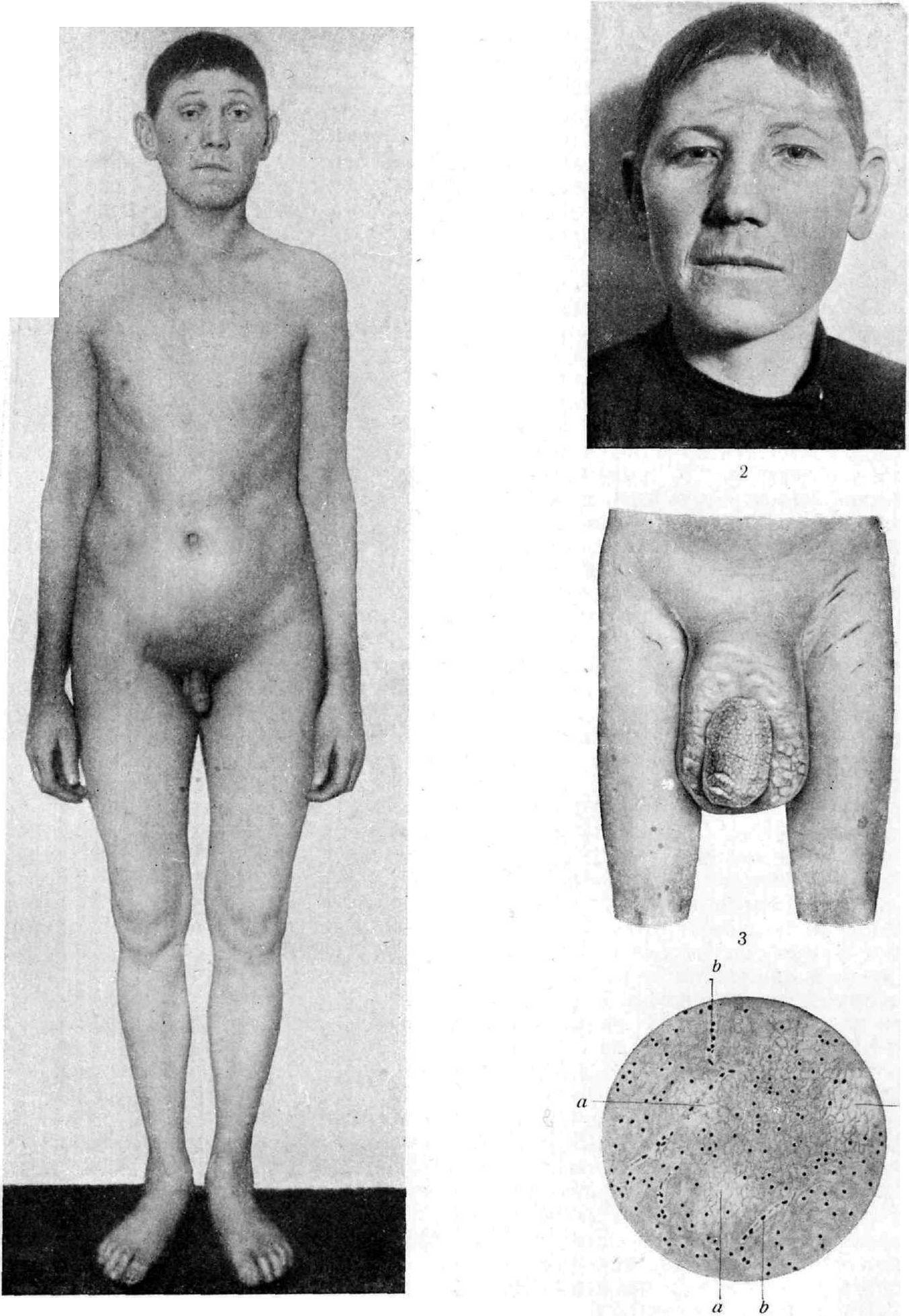 Фото половых орган у девушек 9 фотография